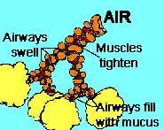 Airways are restricted by spasming muscles, swollen passages and mucus.