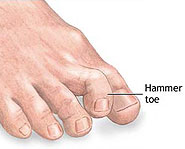 A person with hammertoes has toes that are curled up until they're practically vertical.