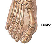 Bunions are passed down from your parents cuz you tend to have the same foot shape as them.
