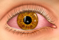 Pink eye is an eye infection that turns your eyes pink or red.