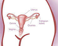 Cervical cancer is cancer of the cervix, but it may be prevented with the HPV vaccine.