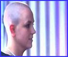 Britney baldpoll