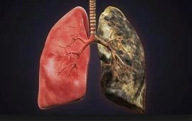 Lungs after smoking cancer